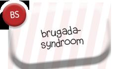 Brugadasyndroom